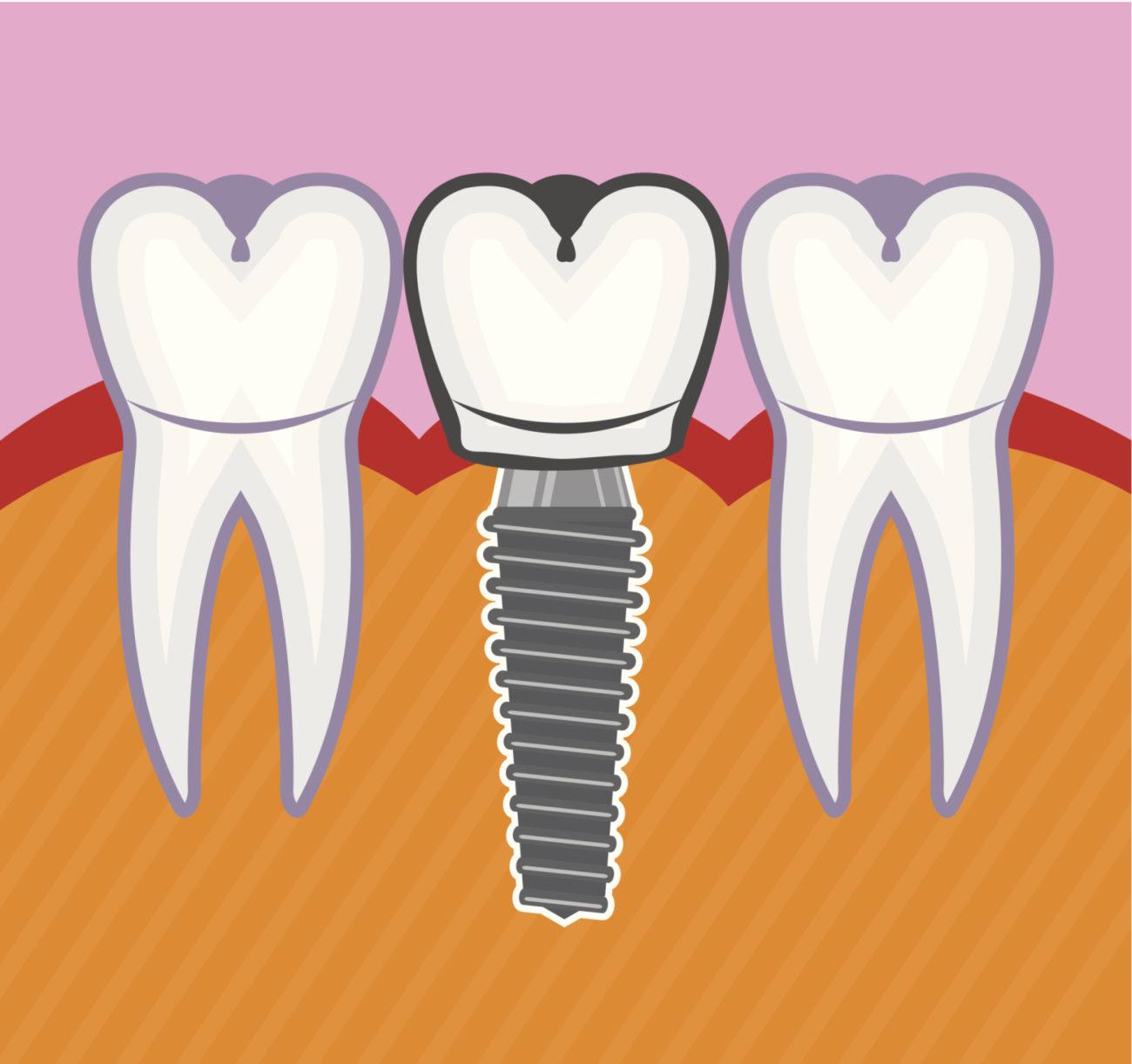 dental implants montclair ca