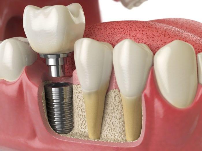 Cost of Dental Implants Montclair CA
